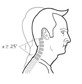 Гиперлордоз шейного отдела позвоночника