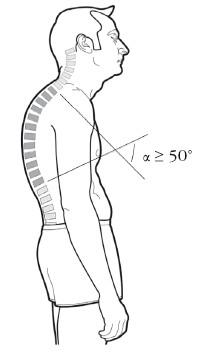 Гиперкифоз грудного отдела. Диагностика и лечение позвоночника