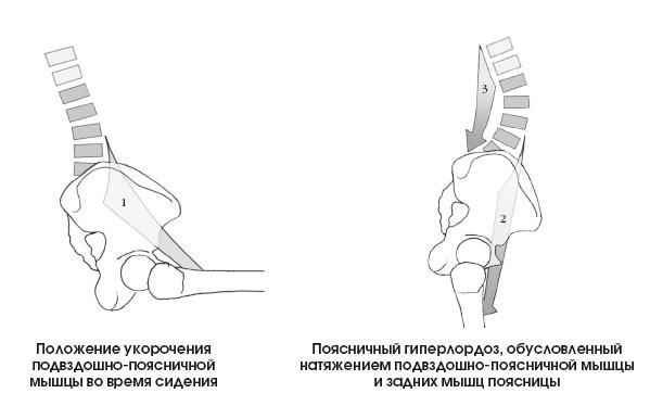 Гиперлордоз поясничного отдела позвоночника