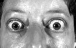 Характерный взгляд больного тиреотоксикозом