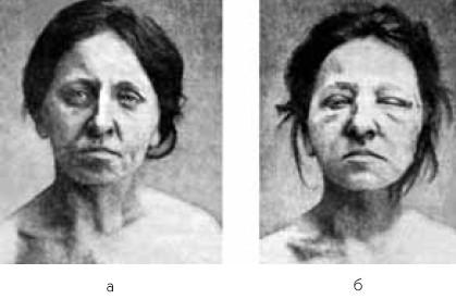 Больная базедовой болезнью во время тиреотоксического криза