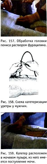 Засовывание катетеров в пенис питерских